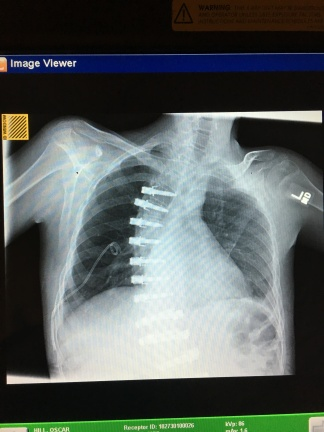 Chest x-ray: one of 13? so far